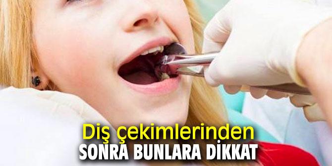 Uzmanı uyardı: Diş çekimi sonrası bunlara dikkat