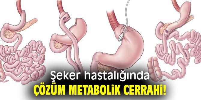 Şeker hastalığında çözüm metabolik cerrahi!