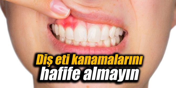 Diş eti kanamalarını hafife almayın