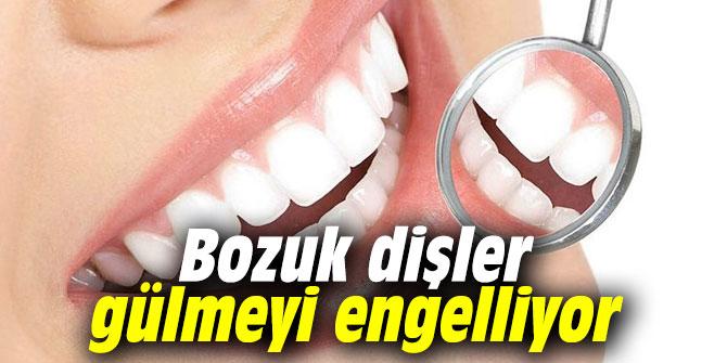 Bozuk dişler gülmeyi engelliyor