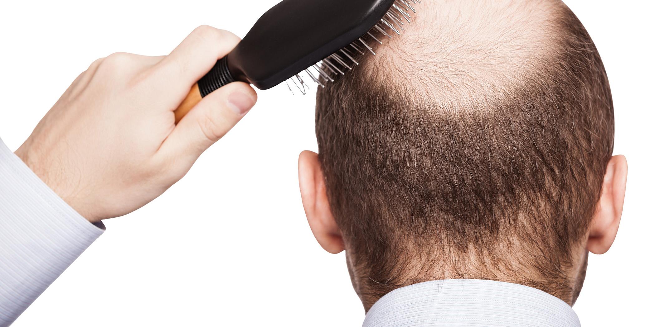 Выпадение волос у парней лечение