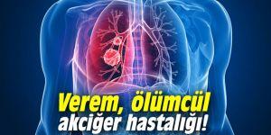 Verem, ölümcül akciğer hastalığı!