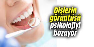 Dişlerin görüntüsü psikolojiyi bozuyor