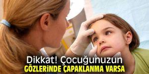 Dikkat! Çocuğunuzun gözlerinde çapaklanma varsa...