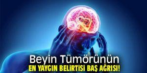 Baş ağrınızın sebebi beyin tümörü olabilir!