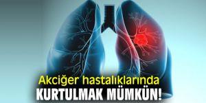 Akciğer hastalıklarından kurtulmak mümkün!