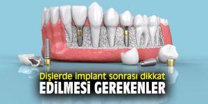 Dişlerde implant sonrası bunlara dikkat
