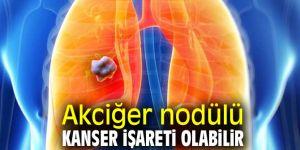 Akciğer nodülüne dikkat! Kanser işareti olabilir