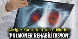 Akciğer Kanserinin Yan Etkilerine karşı 'Pulmoner Rehabilitasyon'