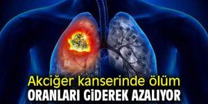Dikkat! Akciğer kanserinde ölüm oranları giderek azalıyor