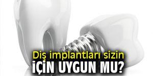 Uzmanı açıkladı! Diş implantları sizin için uygun mu?