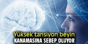 Dikkat! Obezite beyin kanamasını tetikleyen bir unsur