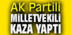 AK Partili Milletvekili kaza yaptı