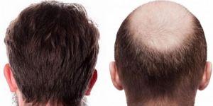 FUE Ve DHI Saç Ekimi Farkları Nelerdir?