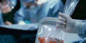 Organ bağışı uygulaması ülkeyi karıştırdı!