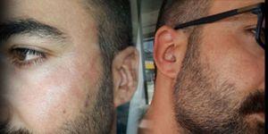 Bu da oldu... CHP Çiğli'de delege seçimlerini izleyen gazeteciye çirkin saldırı...