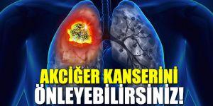 Akciğer kanserini önleyebilirsiniz!