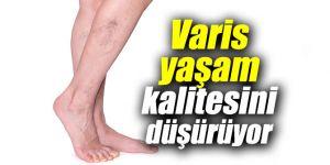 Varis yaşam kalitesini düşürüyor
