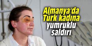 Almanya'da Türk kadına yumruklu saldırı