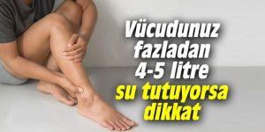 Vücudunuz fazladan 4-5 litre su tutuyorsa dikkat